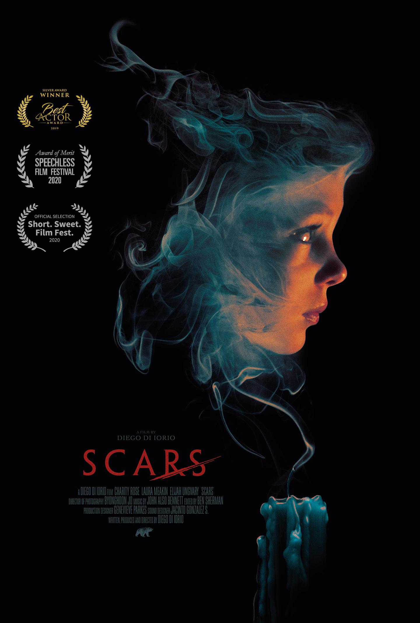 Diego Di Iorio | Scars